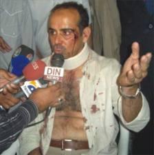 Saudi Official beaten