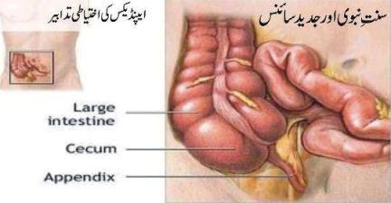 appendix solution in Sunnat
