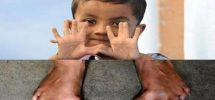 25 fingers boy in India